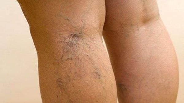 Артроз крестцово -подвздошных сочленений - симптомы.