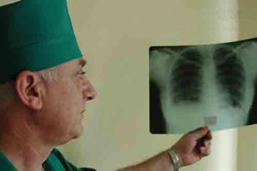 Фиброзный туберкулез