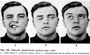 Симптомы неврита лицевого нерва