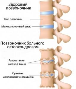 Причины остеохондроза пояснично-крестцового отдела