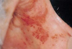 Показатели крови при мононуклеозе