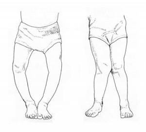 Профилактика рахита у грудничков