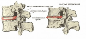 Профилактика поясничного остеохондроза