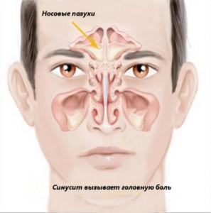 Народная медицина при хроническом синусите