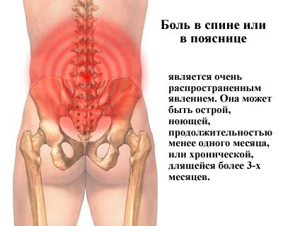 Боль переходит по спине