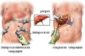 Операция при холецистите