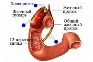 Развитие холецистита могут спровоцировать употребление в пищу жирных блюд, ожирение, сахарный диабет