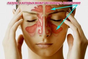 Причины возникновения хронического синусита