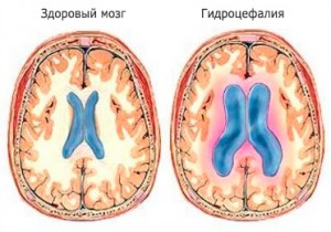 Наружная заместительная гидроцефалия