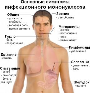 Основные клинические проявления мононуклеоза