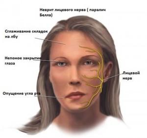 Причины воспаления лицевого нерва