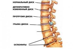 Как происходит развитие остеохондроза