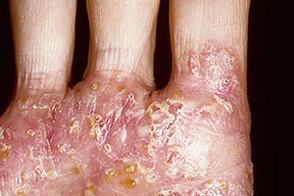 Симптомы и проявления микробной экземы