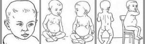 Причины возникновения рахита у детей