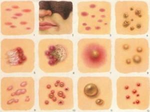Сыпь как симптом заболевания