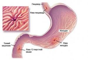 Механизм возникновения язвы желудка