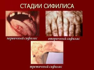 Что такое первичный сифилис