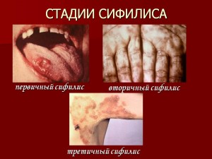 Сифилис влагалища видео фото 216-440
