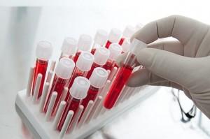 Как биохимический анализ крови покажет онкологическое заболевание?