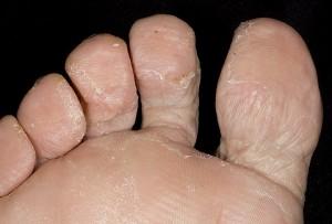 Грибок или сухая кожа стоп и