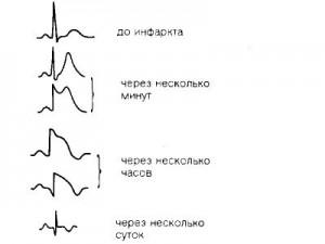 Инфаркт миокарда – это омертвление определенного участка ткани сердца