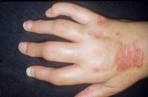 Что вызывает аллергические артриты