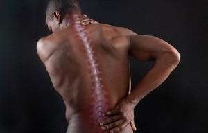 Признаки ушиба спины