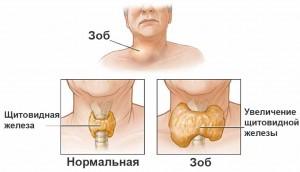 Информация о щитовидной железе