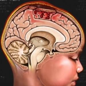Что такое отек мозга и его основные виды