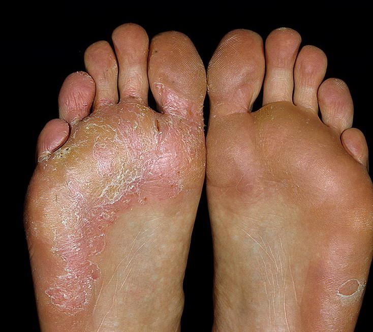 Симптомы дисгидротической формы грибка на ногах