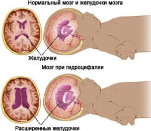 Всегда ли нужно лечение при диагнозе асимметричная гидроцефалия?