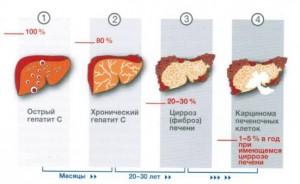 Признаки острого гепатита