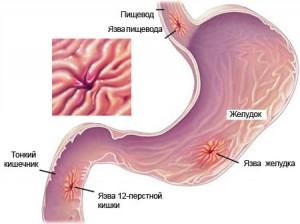 Что провоцирует обострение язвенной болезни и гастрита