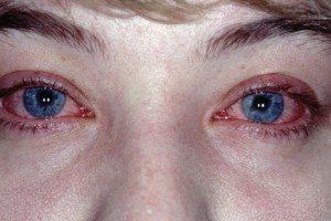 Причины аллергического конъюнктивита