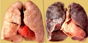 Самые распространённые заболевания от курения
