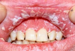 Причины развития молочницы в полости рта