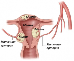 Влияет ли миома на зачатие