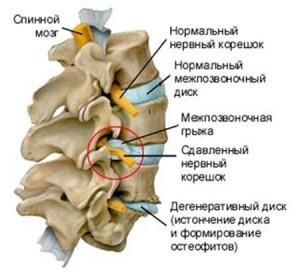 Периоды остеохондроза