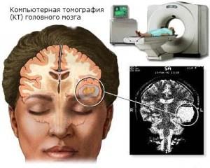 Диагностика и лечение отека мозга