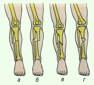 Виды перелома большой берцовой кости