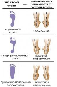 Что такое плоскостопие
