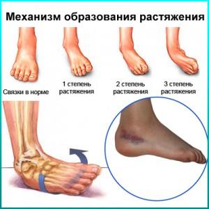 Травматические повреждения конечностей