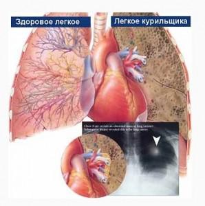 После отказа от курения, происходит восстановление нормальной работы систем организма