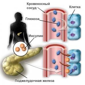 Второй тип сахарного диабета