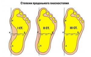 Причины развития плоскостопия у взрослых