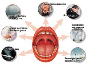 Наиболее распространенные причины возникновения хронического тонзиллита