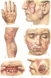 Классификация форм туберкулеза