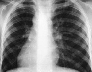 Механизм инфицирования и развития заболевания