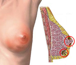 Фиброаденома – разновидность мастопатии