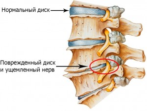 Мануальная терапия и физиотерапия пояснично-крестцового остеохондроза